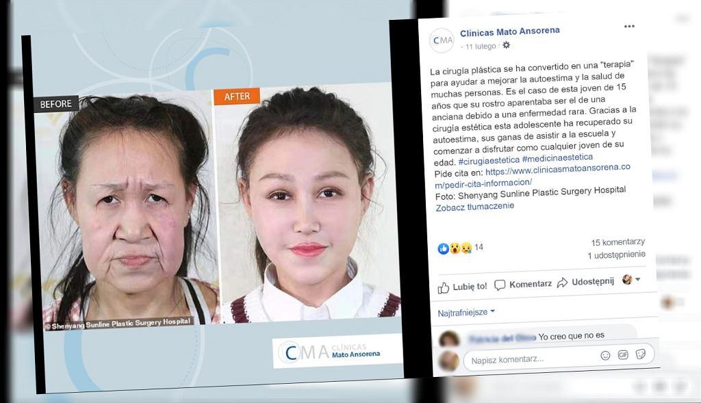 Xiao Feng miała twarz 'sześćdziesięciolatki'. Zoperowano ją.