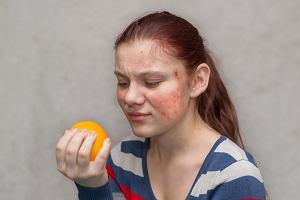 Reakcja alergiczna: rodzaje, leczenie. Jak zapobiegać reakcjom alergicznym?
