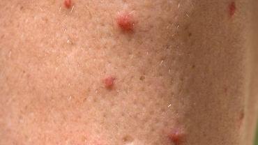 Najbardziej charakterystycznym objawem choroby jest specyficzna wysypka na skórze