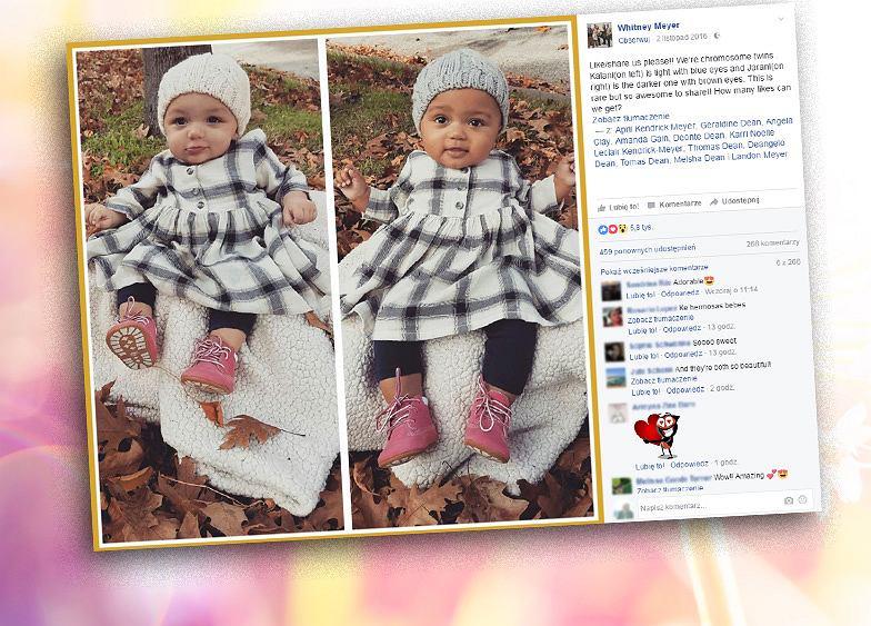 Kalani i Jarani to bliźniaczki, które różnią się kolorem skóry.