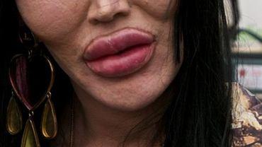 Powiedzieli jej, że zły stan ust to wina seksu oralnego