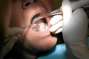 Zostawiła igłę w zębie? Sąd lekarski zajmie się dentystką
