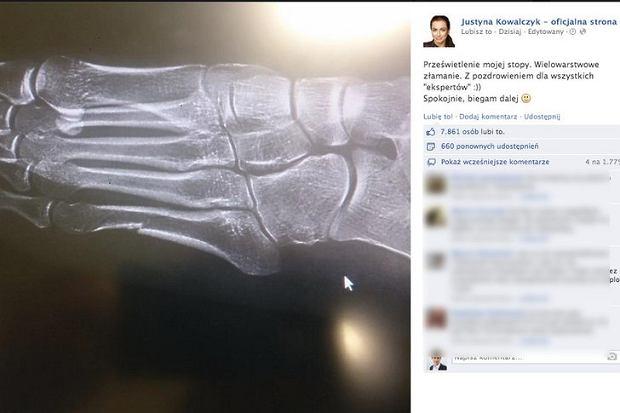 Zdjęcie rentgenowskie stopy Justyny Kowalczyk