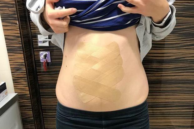 Rozejście mięśni brzucha po porodzie to problem kosmetyczny? Ginekolog: grozi nietrzymaniem moczu, kału, wypadaniem macicy