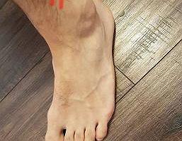 Kontuzja stopy: złamanie zmęczeniowe kości strzałkowej