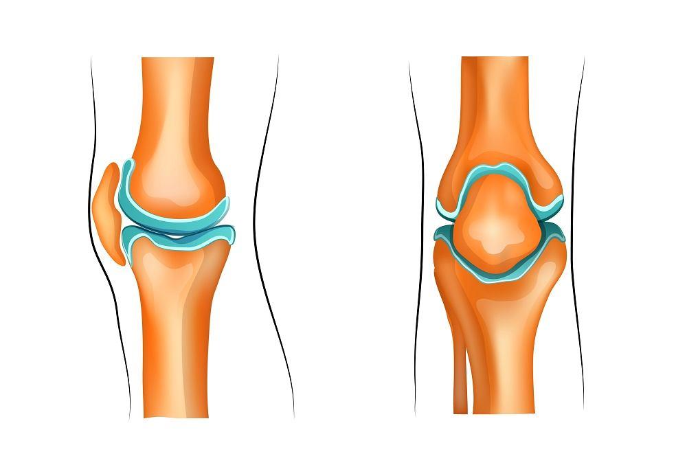 Torbiel Bakera to łagodny guzek, który pojawia się tuż pod kolanem, najczęściej między głową przyśrodkową mięśnia brzuchatego a mięśniem półbłoniastym, w wyniku nagrodzenia płynu w dole podkolanowym.