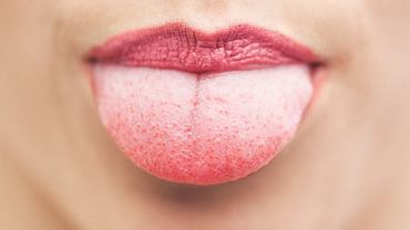 Kolor języka może być istotnym źródłem informacji o stanie naszego zdrowia, np. chorobach, na które cierpimy.