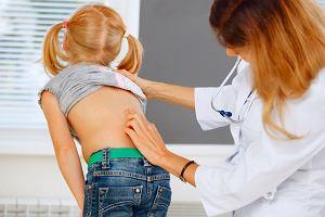 Ból kręgosłupa u dziecka: przyczyny, diagnostyka, leczenie