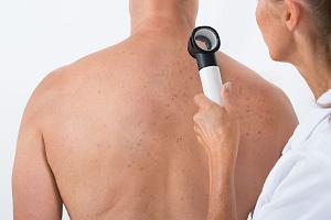 Rak skóry. Nie ma bezpiecznego opalania