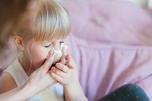 Zatkany nos - przyczyny, objawy i leczenie. Domowe sposoby na niedrożny nos