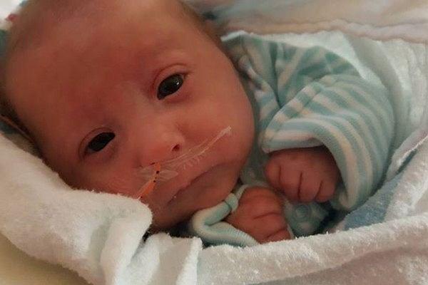 7-miesięczny chłopiec jest tak malutki, że nosi ubranka dla lalek. To wina rzadkiej wady wrodzonej