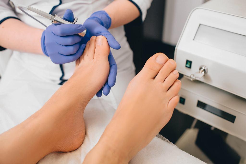 Coraz częściej w przypadku grzybicy paznokci stosowana jest terapia laserowa. Zdjęcie ilustracyjne
