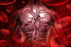 Zespół żyły głównej górnej: przyczyny, objawy, leczenie