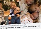 Rodzice dowiedzieli się, że troje ich dzieci ma rzadki nowotwór. Ich mama przez tę chorobę straciła oko