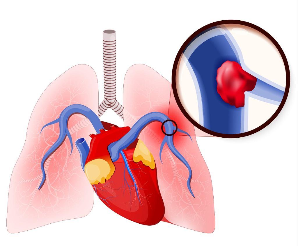 Zatorowość płucna to stan, w którym skrzepnięta krew 'zamyka' naczynia krwionośne w płucach i uniemożliwia swobodny przepływ krwi, co odbija się na funkcjonowaniu całego układu krwionośnego