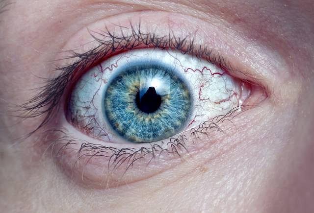 Guzki Lischa to nienowotworowe guzki występujące w obrębie tęczówki. Są najbardziej charakterystycznym objawem nerwowłókniakowatości typu 1