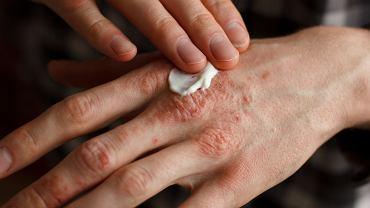 Kosmeceutyki to kosmetyki, które poza działaniem pielęgnacyjnym także leczą. Stosowane są m.in. pacjentom dotkniętym łuszczycą
