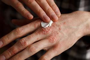 Kosmeceutyki - czym się różnią od zwykłych kosmetyków i kiedy są stosowane?