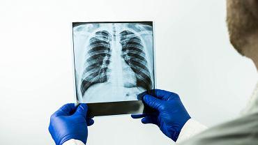 Obrzęk płuc: kiedy się pojawia, leczenie. Czy obrzęk płuc jest zagrożeniem życia?