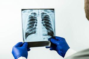 Obrzęk płuc: przyczyny, objawy, leczenie. Czy obrzęk płuc jest zagrożeniem życia?