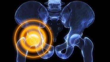 Zmiany zwyrodnieniowe najczęściej dotykają staw kolanowy lub biodrowy