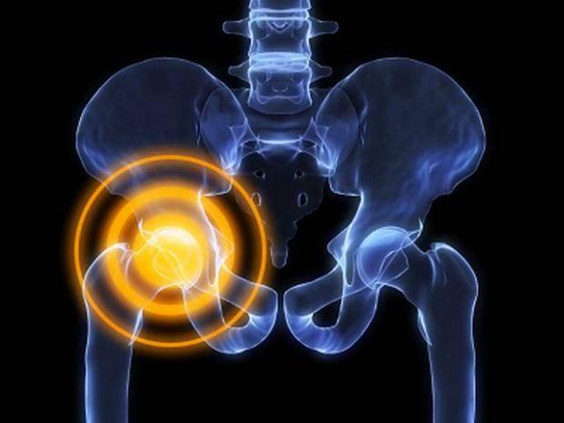 Zapalenie stawu biodrowego: przyczyny, leczenie