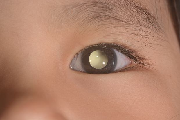 Siatkówczak (retinoblastoma)