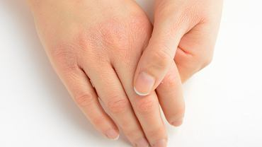 Masz suche i zniszczone dłonie? Poznaj proste i tanie, domowe sposoby na wysuszoną skórę rąk