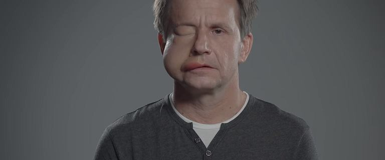 Bartłomiej Topa udostępnił wstrząsające nagranie, na którym ma opuchniętą twarz