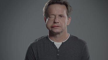 """Bartłomiej Topa z opuchniętą twarzą. """"Każda choroba wyzwala strach"""""""