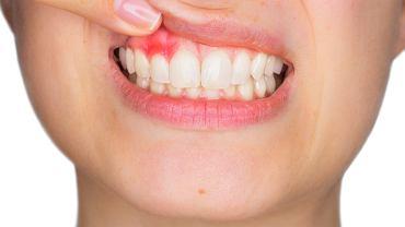 Zapalenie dziąseł, choć jest dolegliwością, która często dotyka wiele osób, nie może być ignorowany. Choroba bowiem nie tylko powoduje dolegliwości bólowe i dyskomfort, ale i może prowadzić do zapalenia przyzębia, skutkującego przedwczesną utratą zębów.