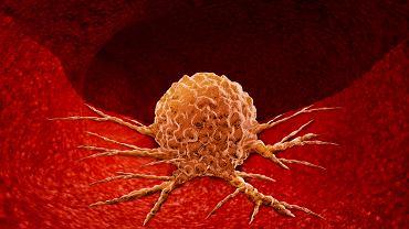 Guz nowotworowy, w zależności od charakteru, określa się jako łagodny, miejscowo złośliwy lub złośliwy