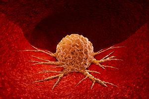 Guz nowotworowy - co to takiego? Jakie są rodzaje guzów i jak wygląda ich leczenie?