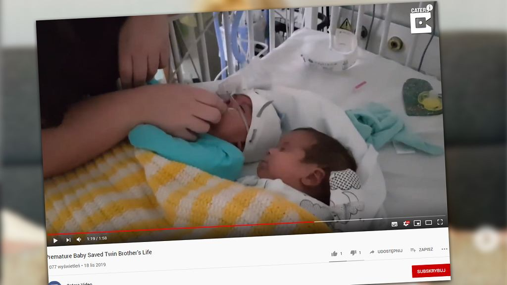 Bliźnięta urodziły się przed planowanym terminem. Jeden z nich uratował życie drugiemu