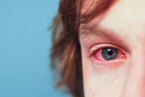 Histamina - co ma wspólnego z alergią? Funkcje histaminy