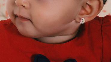 Przebiła uszy córce, a ta prawie straciła ucho