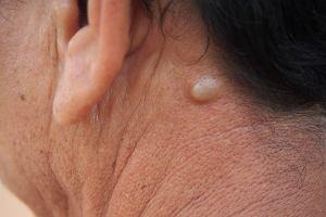 Kaszak - przyczyny, objawy i leczenie