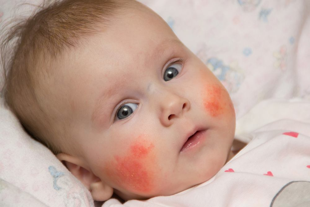 Wysypka na twarzy u dziecka może mieć różne przyczyny. Zdjęcie ilustracyjne