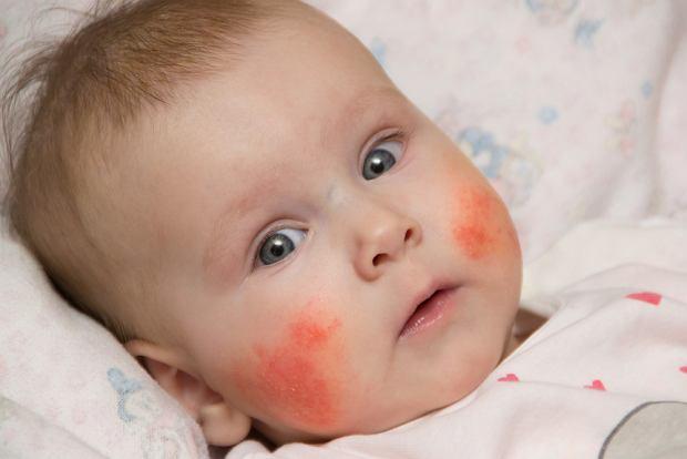 Wysypka na twarzy dziecka - przyczyny, rodzaje, leczenie
