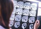 Liczba chorych na demencję wciąż rośnie. WHO podaje, co robić, aby zmniejszyć ryzyko zachorowania