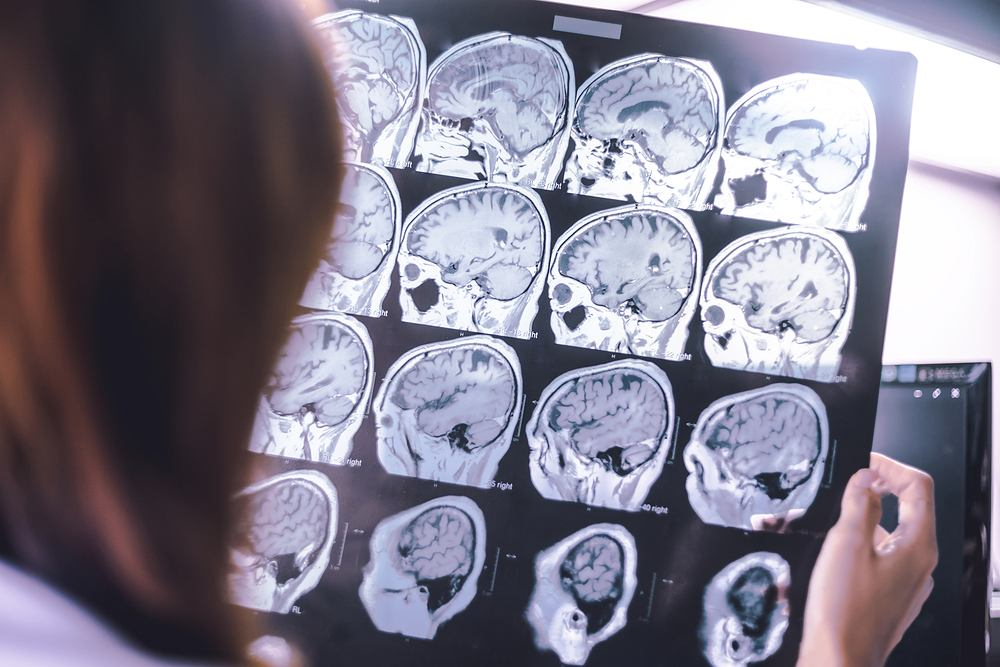 WHO podaje sześć zaleceń, które mają zmniejszać ryzyko demencji