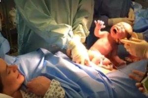 Już 40% porodów w Polsce to cesarskie cięcia. Brytyjki mają coś dużo lepszego [WIDEO]