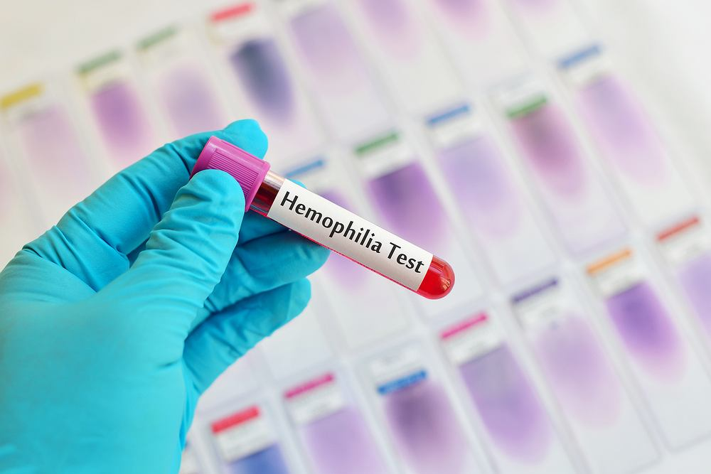 Hemofilia jest chorobą uwarunkowaną genetycznie. Dotyczy głównie mężczyzn - kobiety są nosicielkami genu predysponującego do pojawienia się skazy krwotocznej