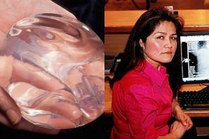 Implanty ratujące życie.