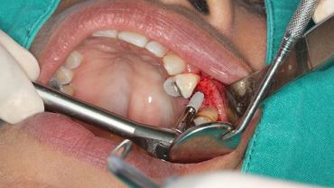 Uzupełnienie brakujących zębów może uchronić kolejne przed wypadnięciem.