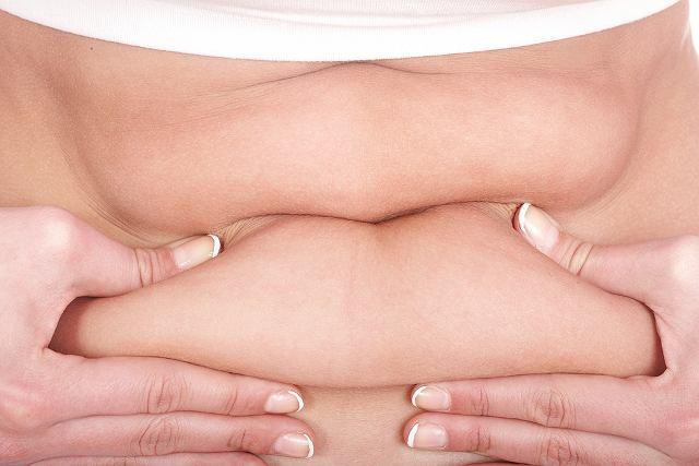 W leczeniu zapalenia tkanki tłuszczowej stosuje się niesteroidowe leki przeciwzapalne