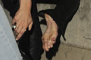 Jak się idzie na imprezę, to trzeba zadbać o każdy szczegół, a czyste stopy są szczególnie ważne. Przecież nigdy nie wiadomo, gdzie przyjdzie ci spać. Kate Moss chyba o tym zapomniała. A może nie liczyła na poznanie kogoś?!