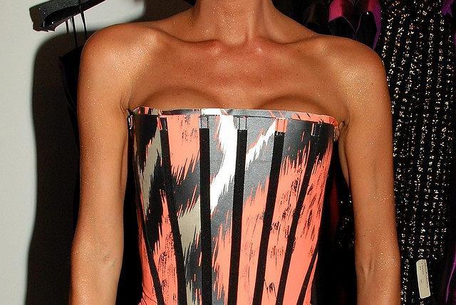 Strasznie chude ręce, wystające kości i mocno widoczne silikony - tak wygląda Victoria Beckham na swoich najnowszych zdjęciach...