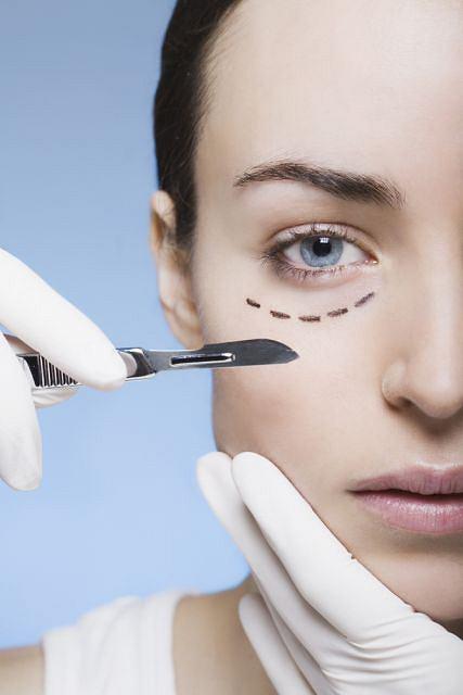 Zabieg redukujący cienie pod oczami polega na wstrzyknięciu tłuszczu pacjenta w odpowiednie miejsca.