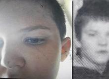 Wyszedł do babci i zaginął. 12-letni Daniel jest leczony neurologicznie